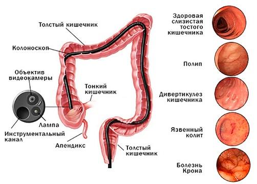 колоноскопия диагнозы