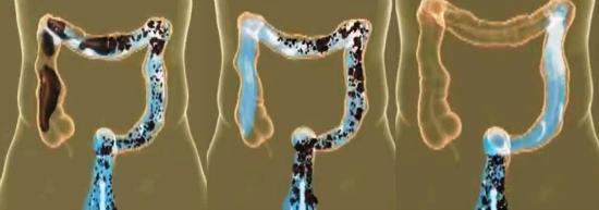 очищение толстого кишечника водой