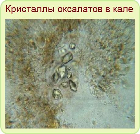 оксалаты в кале