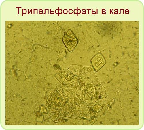 трипельфосфаты в кале