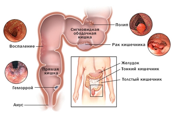 патологии нижних отделов кишечника