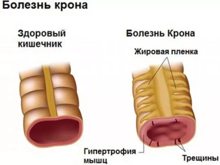 Отличие здорового кишечника от кишечника с болезнью Крона