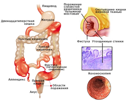 Поражение слизистой кишечника при болезни Крона