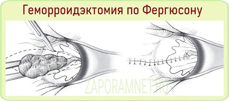 Геморроидэктомия по Фергюсону