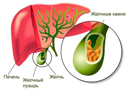 Схема расположения желчного пузыря